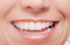 くれいし歯科ホワイトニング