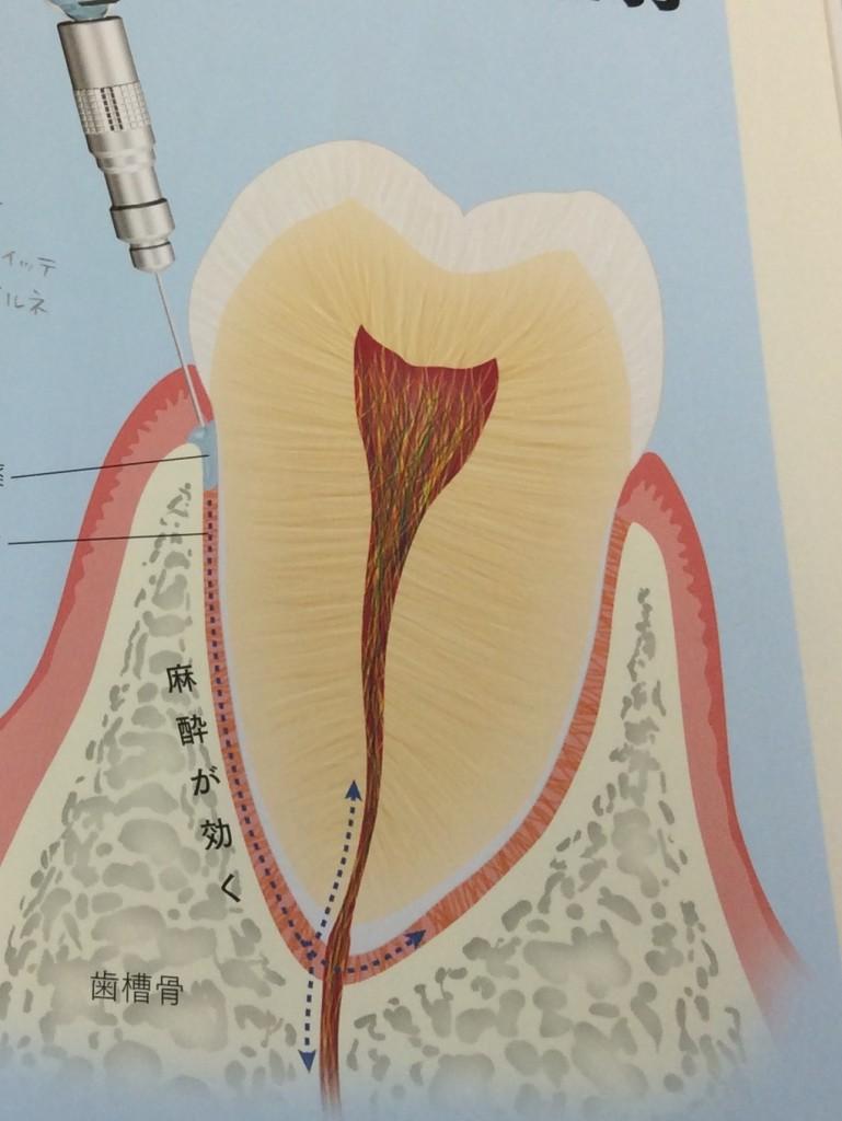 歯根膜注射