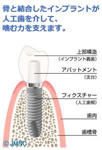 くれいし歯科インプラント